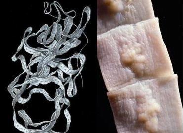Ленточные черви у человека: бычий цепень, широкий лентец, свиной цепень, эхинококк
