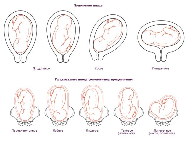 Предлежание плаценты при беременности: что это, классификация, фото, УЗИ, роды