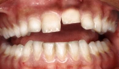 Вколоченный, полный и неполный вывих зубов: лечение, рентген, осложнения