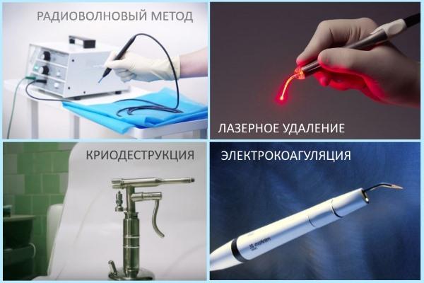 Контагиозный моллюск: фото, симптомы, лечение в домашних условиях, удаление лазером
