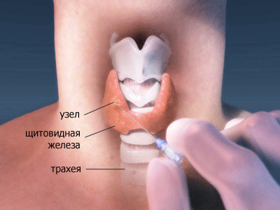 Признаки заболеваний щитовидной железы: перечень распространенных симптомов заболеваний щитовидной железы