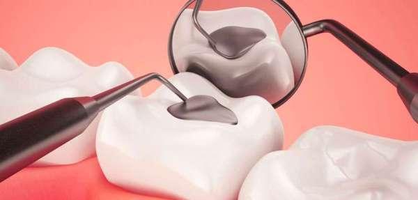 Химические пломбы для зубов: названия, вред и польза, срок службы цементов
