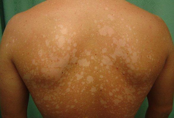 Сыпь на коже, сопровождающаяся зудом и болевыми ощущениями: причины, диагностика, лечение
