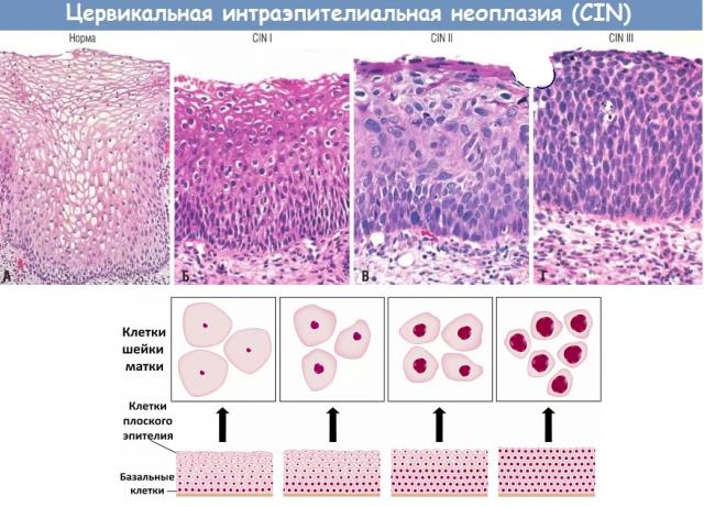 Биопсия шейки матки – что это такое, как проводится биопсия, расшифровка