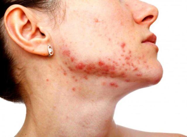 Стафилококковая инфекция: симптомы и лечение, причины развития, диагностика