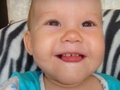 Серебрение зубов у детей при кариесе молочных зубов: фото до и после, отзывы врачей