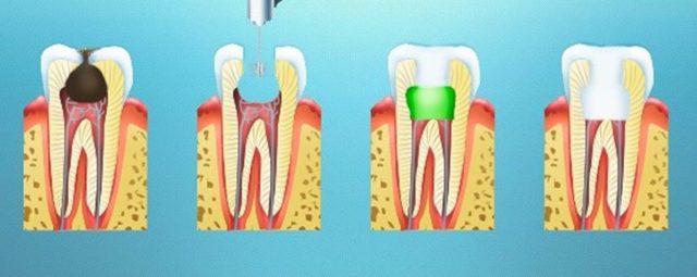 Пульпит молочного зуба: что это такое, лечить или удалять зуб при пульпите у детей