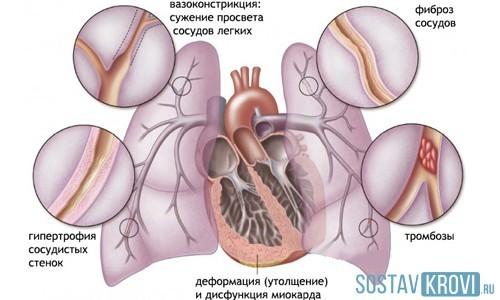 Легочное сердце: диагностика и лечение, сколько с этим живут