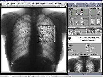 Как расшифровать результат флюорографии?