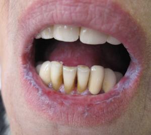 Красный плоский лишай слизистой рта и кожи, симптомы и лечение