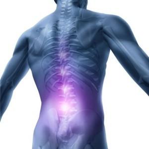 Остеопороз – симптомы, причины, терапевтические методы лечения остеопороза и лечение остеопороза народными средствами, диета при остеопорозе.