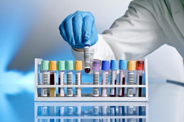 Какие анализы на онкомаркеры бывают