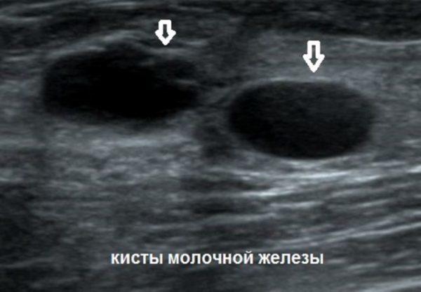 Опухоли молочной железы доброкачественного характера: виды и лечение