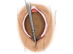 Эпизиотомия и перинеотомия в родах: что это такое, отличия, какие мышцы рассекаются