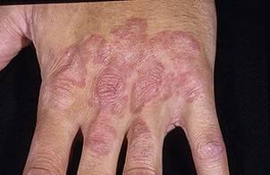 Дерматомикоз: симптомы у человека и лечение, возбудители дерматомикоза