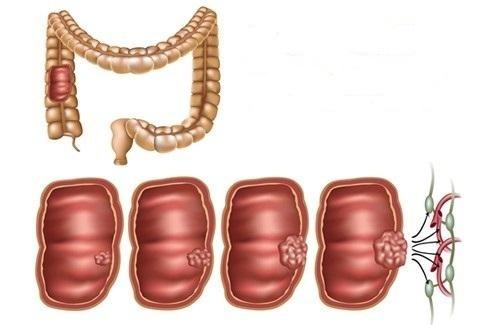 Колоректальный рак – симптомы, метастазы, скрининг, лечение и операция