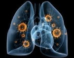 Вирусная пневмония: симптомы у взрослых и детей, причины развития, вирусная пневмония на фоне гриппа, методы лечения вирусной пневмонии и профилактики.