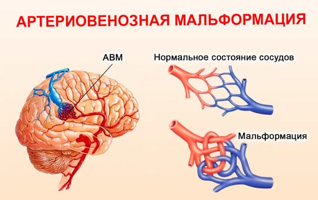 Что делать, если постоянно слышу в ухе звук пульсирующей крови?