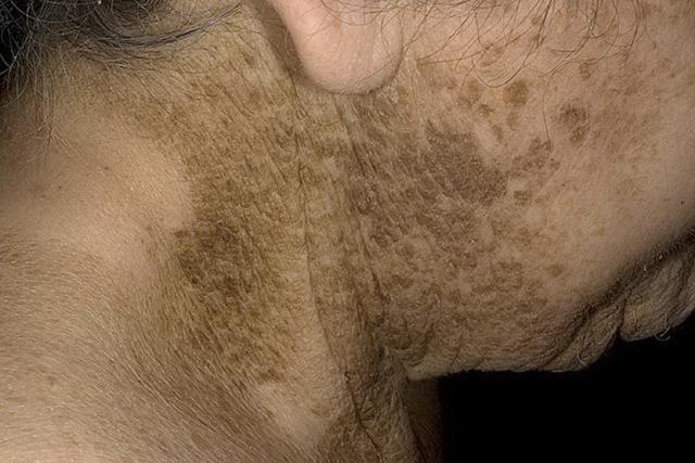 Кератома кожи: что это такое, симптомы, фото, лечение в домашних условиях