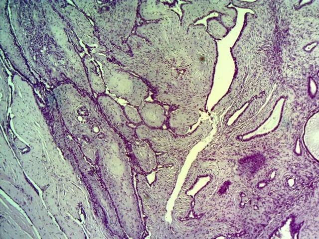 Какое новообразование могло возникнуть после удаления фиброаденомы?