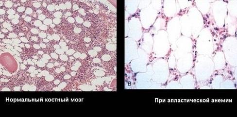 Апластисческая анемия: что это такое, симптомы, диагностика по картине крови, лечение