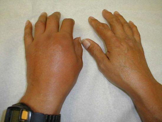 Лечение артрита лучезапястного сустава: препараты и лечение народными средствами