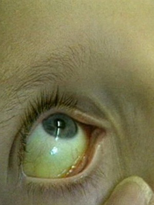 Болезнь Боткина у детей: симптомы и детей, какой это гепатит, возбудитель