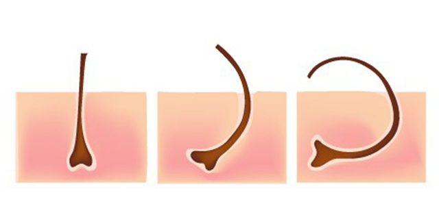 Как избавиться от вросших волос, почему врастают волосы, средства от вросших волос