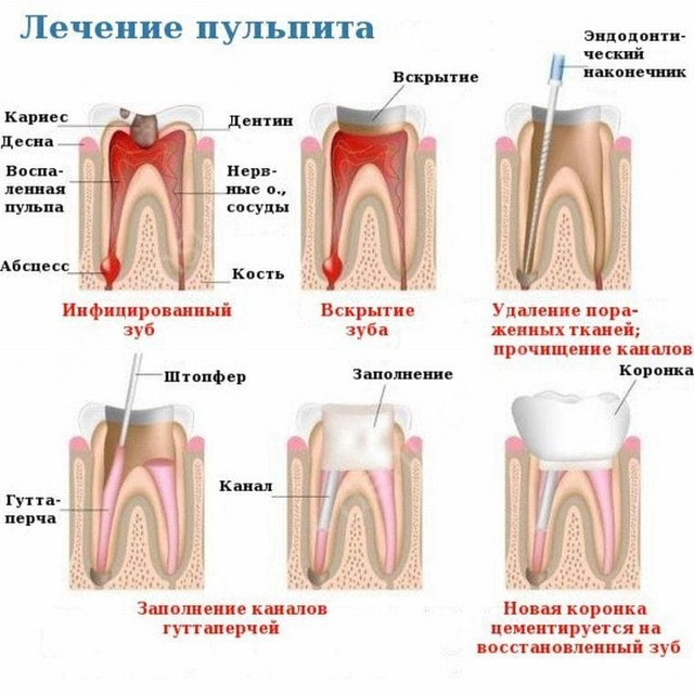 Пульпит зуба: что это такое, как лечат пульпит, хронический и острый пульпит
