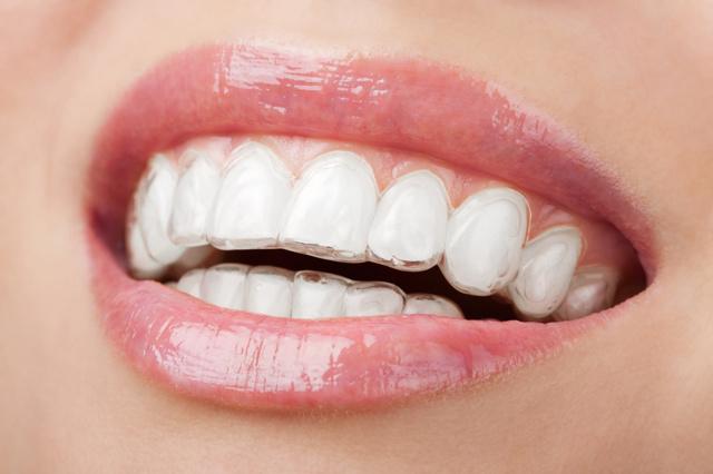 Капа для выравнивания зубов стоматологическая, как выровнять зубы элайнером
