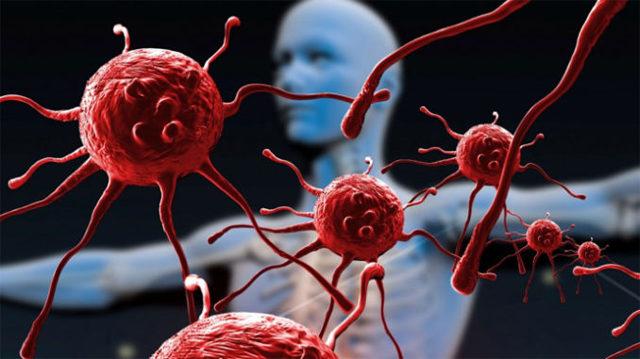 К какому врачу обратиться при воспалении подмышечного лимфоузла?