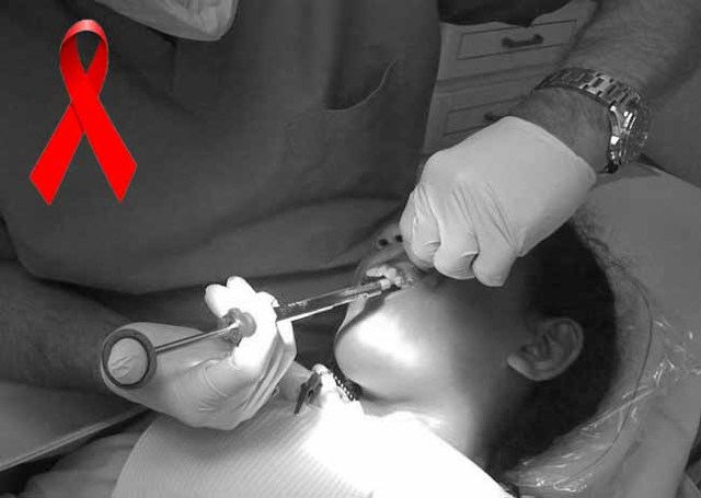 Можно ли заразиться ВИЧ в стоматологии, у стоматолога
