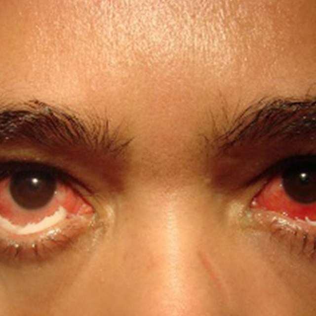 Симптомы и первые признаки гонореи у мужчин, женщин, осложнения гонореи