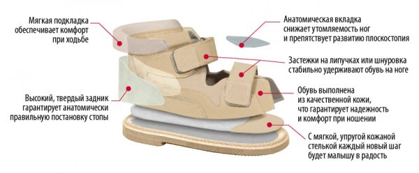 Деформация стопы — лечение, профилактика, виды деформации стопы у детей и взрослых